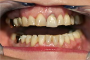 Full mouth reconstruction before treatment