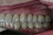 full mouth reconstruction after treatment