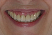 full mouth reconstruction smile after treatment