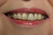 full mouth reconstruction smile before treatment